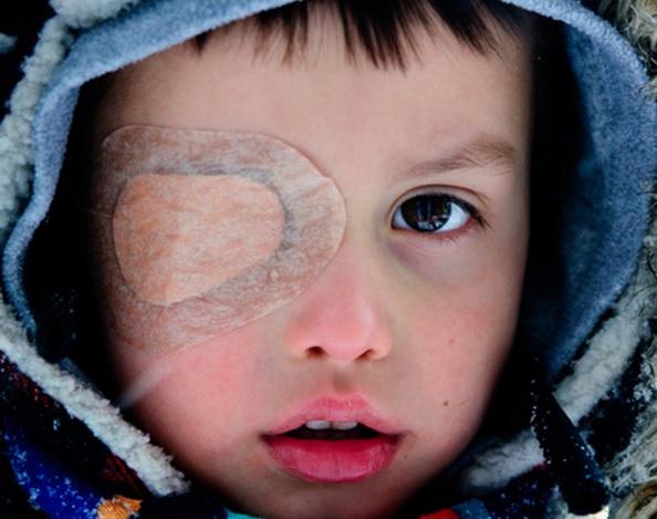 子供の逆さまつげの手術 心配しないで 実体験からわかること 子供の不安を取り除く対応
